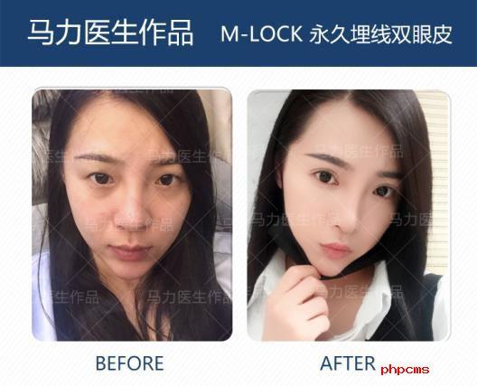 北京爱悦丽格马力:做双眼皮手术需要知道哪些干货?