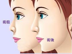西安伊美尔整形曼特波隆鼻怎么样 提升你的精致度让你大不同